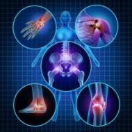 Detecção de marcador de reabsorção óssea - CTXI