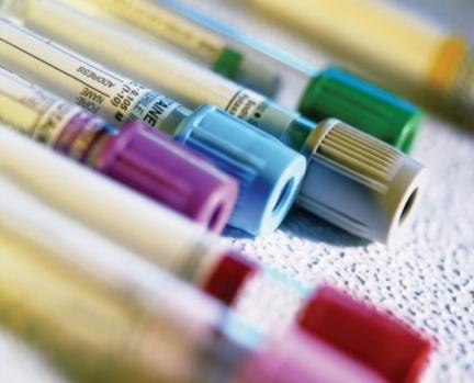 Importantes considerações na dosagem de citocinas no soro ou plasma.