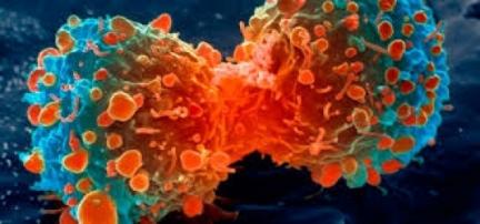 Pesquisadores descobrem as proteínas responsáveis pela metástase do câncer e como controlá-las.